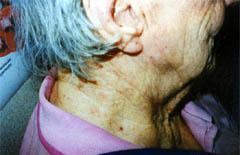 eczema-after