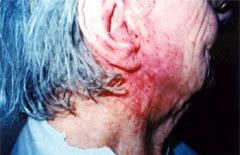 eczema-before
